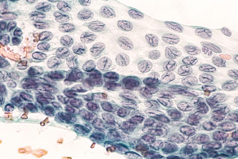 Tratamiento de Tumores